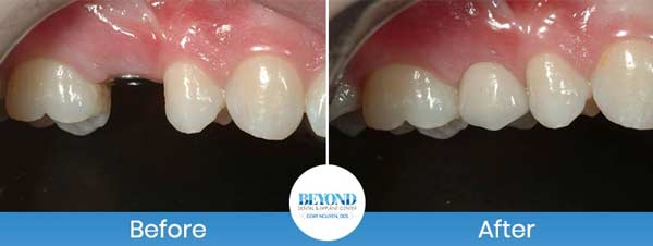 Single and Multiple Teeth Implants Service in Dallas, TX and Fort Worth, TX