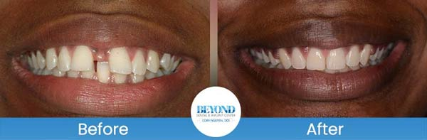 Orthodontics Smile Gallery Near Me in Dallas, TX and Fort Worth, TX