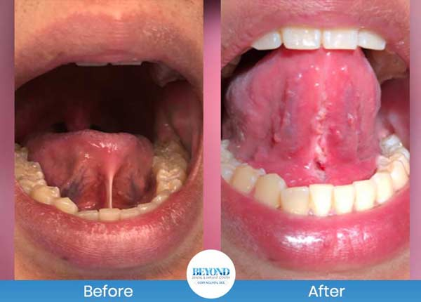 Tongue Tie Surgery Before and After Photos of Patients in Dallas, TX and Fort Worth, TX