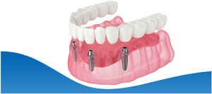 All-on-4 Dental Implants Near Me in North Fort Worth TX, and Dallas TX