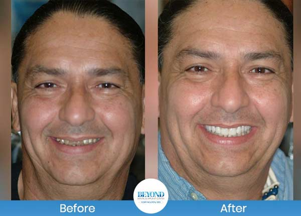 Smile Makeover Gallery in Dallas & Fort Worth, TX