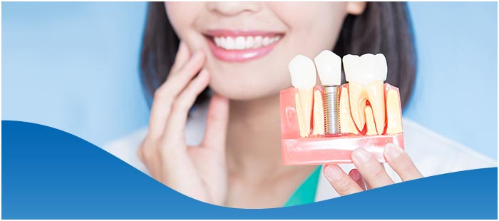 Affordable Dental Implant Near Me in Dallas, TX and Fort Worth, TX