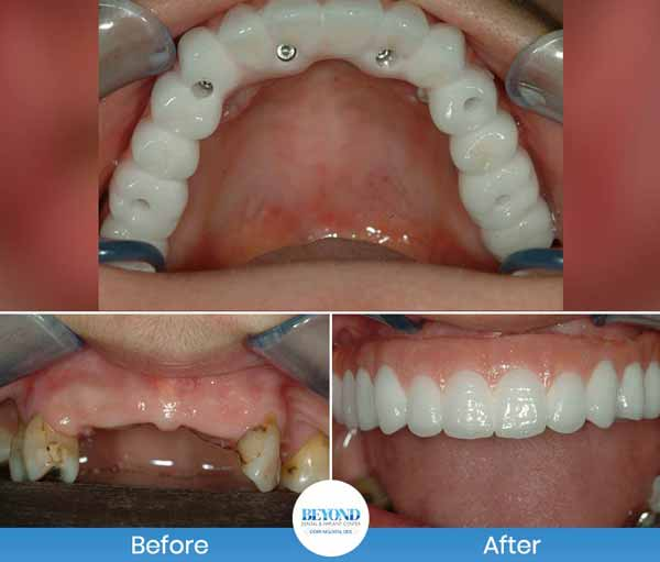 All-on-4 Dental Implant Process In DFW Area
