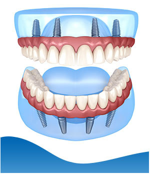 All-On-4 Dental Implants - Beyond Dental and Implant Center Dentistry in Texas