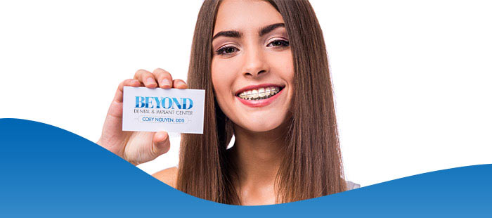 Clear Braces Treatment Near Me in Dallas TX, and Fort Worth TX