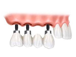 Implant Bridges at Beyond Dental & Implant Center in Fort Worth & Dallas, TX