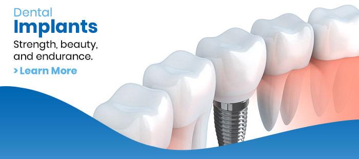 Dental Implant Services Fort Worth & Dallas, TX