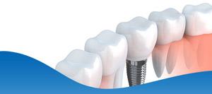 Dental Implant Doctor in Dallas, TX