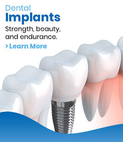 Dental Implants - Beyond Dental and Implant Center Dentistry in Texas