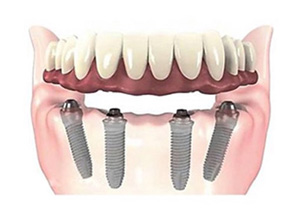 Implant Hybrid Prosthesis (Upper and Lower Jaw) at Beyond Dental & Implant Center in Fort Worth & Dallas, TX