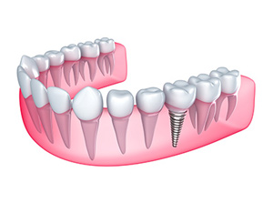 Single Tooth Implant at Beyond Dental & Implant Center in Fort Worth & Dallas, TX