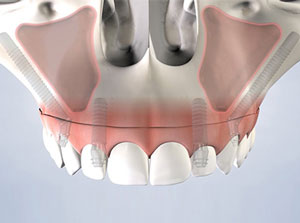 Pterygoid and Zygomatic Implants at Beyond Dental & Implant Center in Fort Worth & Dallas, TX