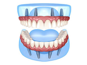 All-On-4® Dental Implants at Beyond Dental & Implant Center in Fort Worth & Dallas, TX