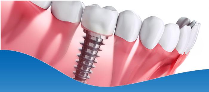 Board-Certified Dental Implant Dentist Near Me Fort Worth, TX
