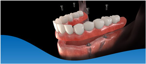 Dental Implants Vs Dentures in Dallas, TX and Fort Worth, TX