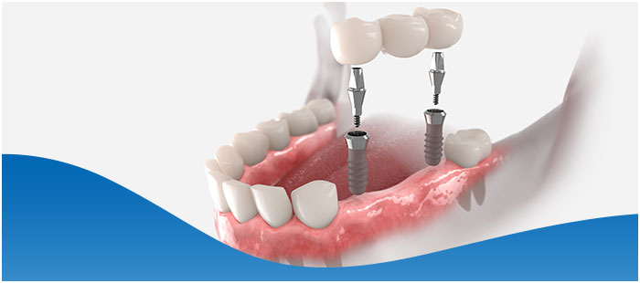 Implant Supported Dentures Procedure Near Me in Dallas, TX and Fort Worth, TX