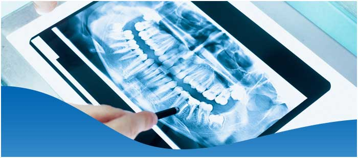 Digital X-Ray Services in Dallas, TX and Fort Worth, TX