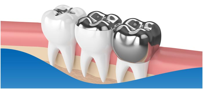 Fillings Vs Crowns Near Me inDallas TX, and Fort Worth TX!