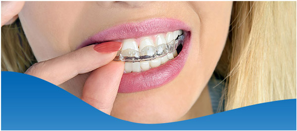 Teeth Grinding and Clenching Treatment in Fort Worth, TX