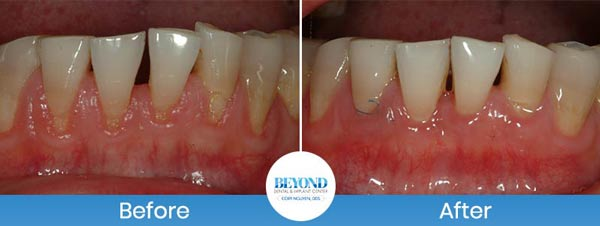 Gum Lift and Gum Graft Services Near Me in Fort Worth, TX & Dallas, TX