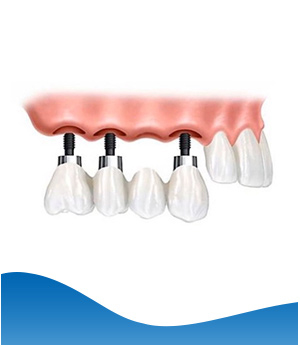 Implant Bridges - Beyond Dental and Implant Center Dentistry in Texas