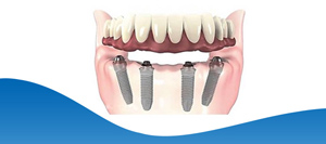 Implant Hybrid Prosthesis for Lower Jaw Near Me