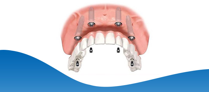 Implant Hybrid Prosthesis (Upper Jaw) in Dallas, TX and Fort Worth, TX