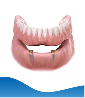Implant Denture (Lower Jaw) - Beyond Dental and Implant Center Dentistry in Texas