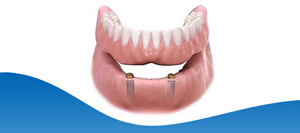 Lower Implant Dentures Near Me in Dallas, TX and Fort Worth, TX