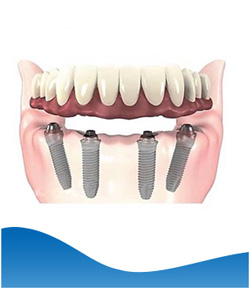 Implant Hybrid Prosthesis (Lower Jaw) - Beyond Dental and Implant Center Dentistry in Texas