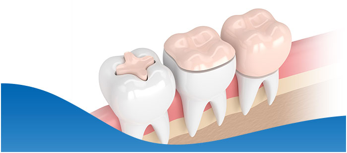 Inlays & Onlays Treatment Questions and Answers Near Me in Dallas, TX and Fort Worth, TX