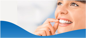 Invisalign® Aligners Procedure Near Me in Dallas, TX and Fort Worth, TX