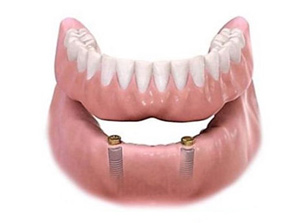 Implant Over Denture (Lower Jaw) at Beyond Dental & Implant Center in Fort Worth & Dallas, TX