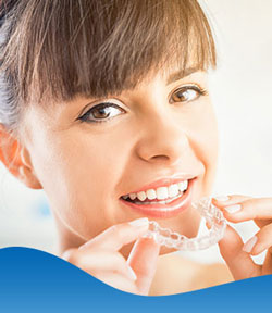 Agility Mouthguard - Beyond Dental and Implant Center Dentistry in Texas