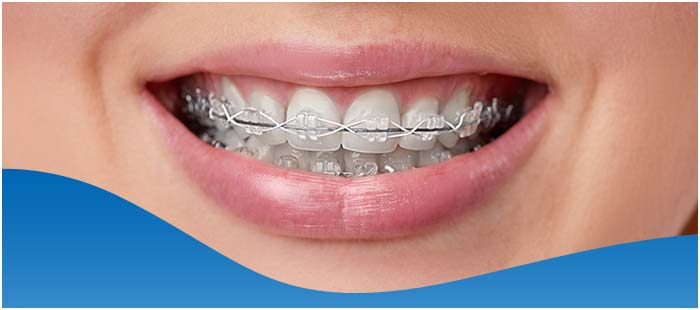 Neuromuscular Orthodontics in Dallas, TX and Fort Worth, TX