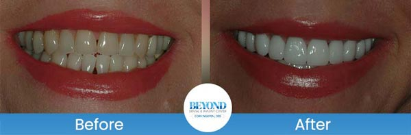 Porcelain Veneers Smile Gallery Near Me in Dallas, TX and Fort Worth, TX
