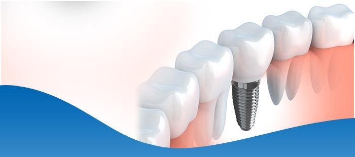 Dental Implants Near Me Fort Worth, TX & Dallas, TX