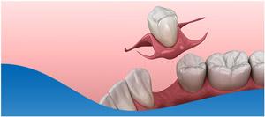Missing Teeth and Bone Loss TreatmentinDallas, TX and Fort Worth, TX