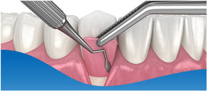 Tooth Socket Graft at Beyond Dental & Implant Center in DFW Area