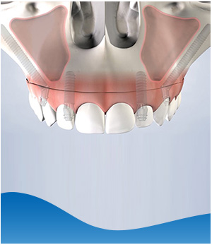 Zygomatic Implants - Beyond Dental and Implant Center Dentistry in Texas