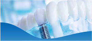 Best All-On-4® Dental Implants Dentist Near Me in North Fort Worth TX, and Dallas TX