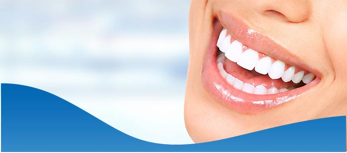 Full Mouth Dental Implants Treatment Near Me in North Fort Worth TX, and Dallas TX