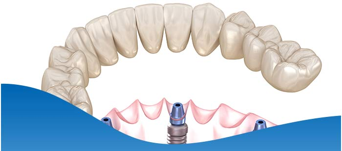 Zygomatic Implants Dentist Near Me in North Fort Worth TX, and Dallas TX